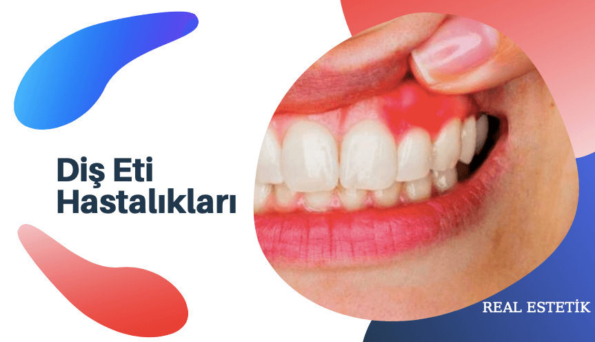 Diş Eti Hastalığı (Periodontoloji) Nedir?