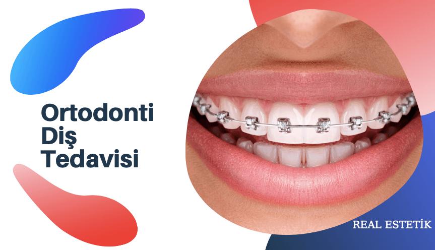 Ortodonti Diş TedavisiNedir? Ortodonti Diş Tedavisi Nasıl Yapılır?
