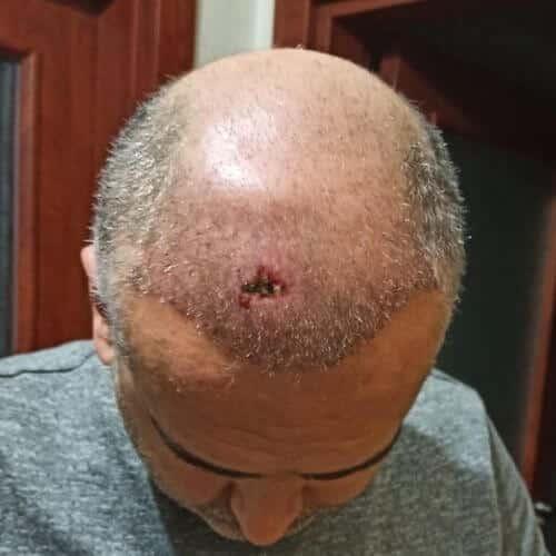 behçet sendromu hastaya saç ekim