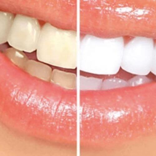 lazerli diş beyazlatma