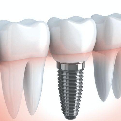 diş implant tedavisi