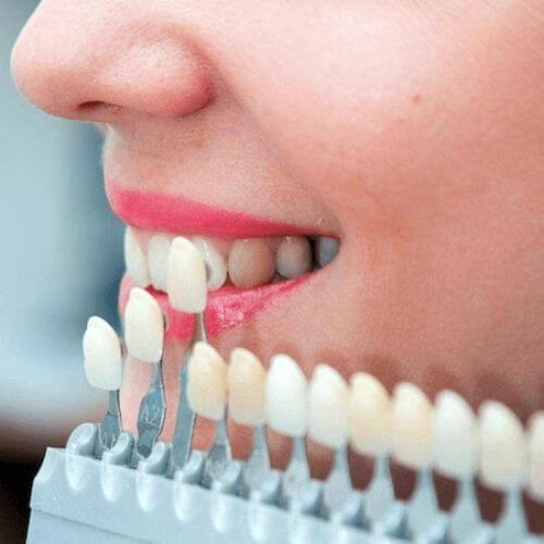 lamine diş estetiği